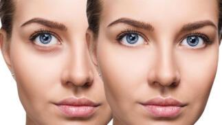 Novedoso tratamiento presoterapia ocular para bolsas y ojeras